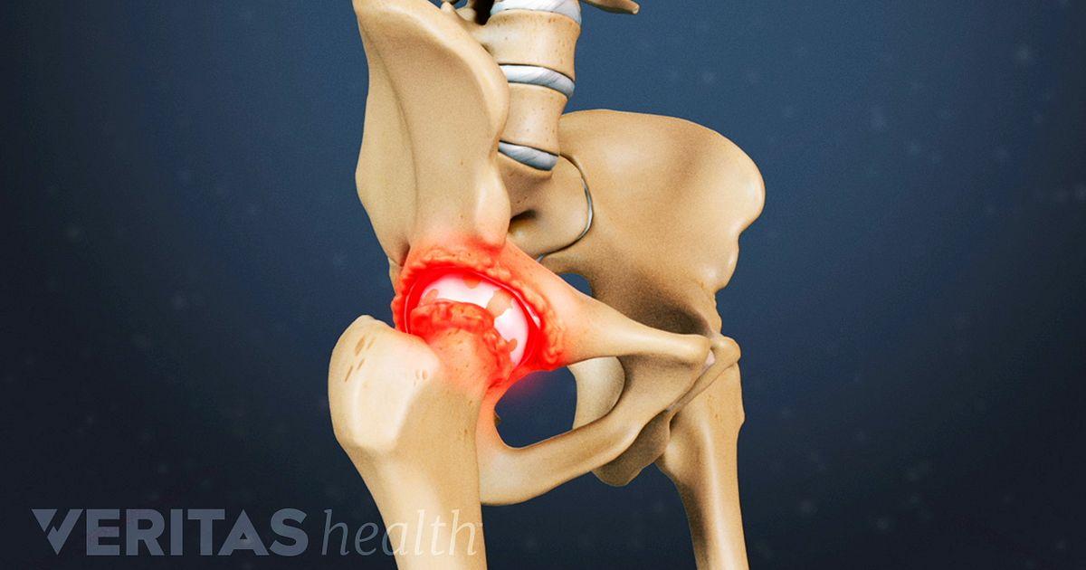 anesteesia hip coxarroosiga 3 polveliigese homoopaatia turse