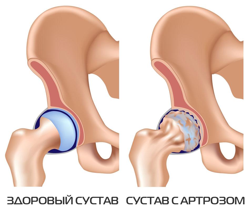 soojendavad geelid osteokondroosi ajal 1 prrh-liite artroos
