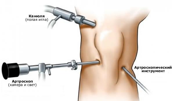 artriidi kui raviks kuidas ravida valu ja kriisi polveliidete