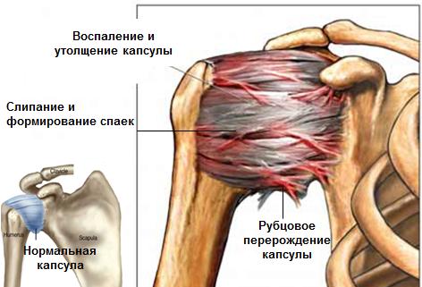 liigeste randmehaigused