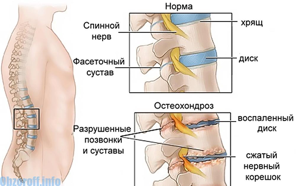 uhine salvi vedelik kas artriidi kaed voivad olla kaed