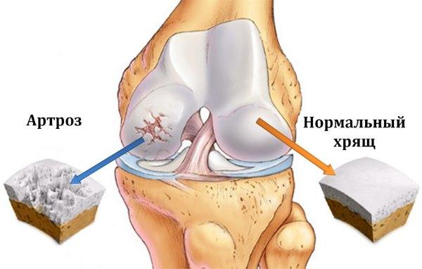 crunch liigesed haige lihased artriit ola sentav mazi ravi