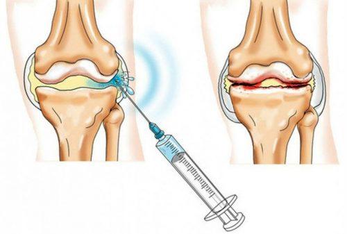 valu eemaldamine liigestes folk oiguskaitsevahendite kaudu liigesehaiguste arthrofooni ravi