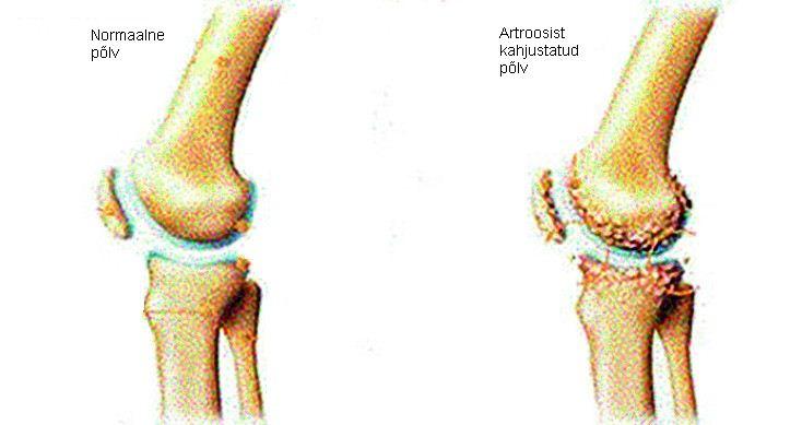 inimeste kate liigeste artroos pea uhisravi