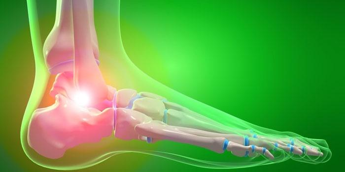 kuidas sirgendada sormede artriidi bump kate liigeste haigused