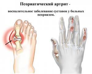 artrots luud kasitsi ravi