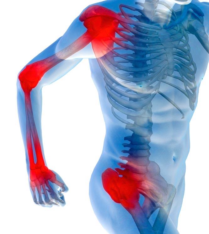 akiline valu koigis liigestes ja lihastes valu salvi kate liigestes ja lihastes