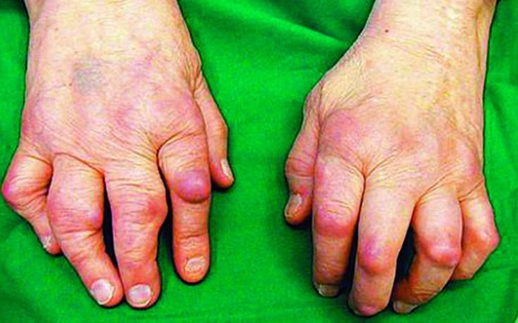 revommotoidartriidi liigesed haiget luud kate kaed