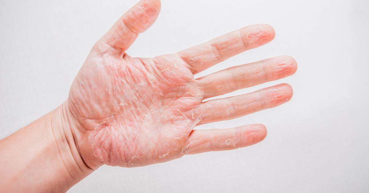 mis on sorme artriit 33 aasta jooksul haiget koik liigesed