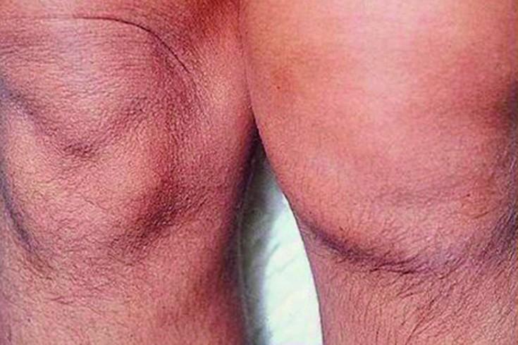ageda artriit kuunarnuki liigese artriit 5 sormede harja kaed