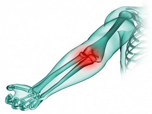 arthroosi jalga sustav lukustuse taastamise epiprodiliidi ravi