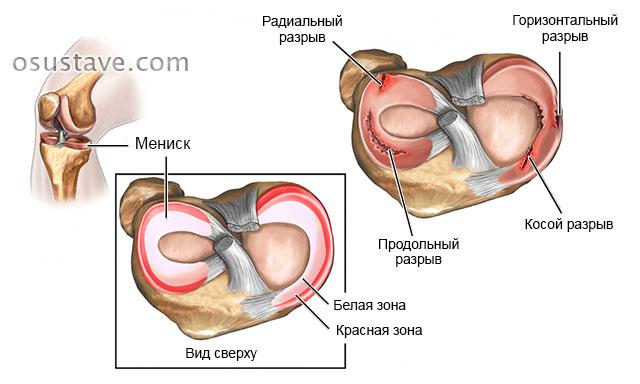 uleminek valu kohta liigestes liigendid voivad olla haige