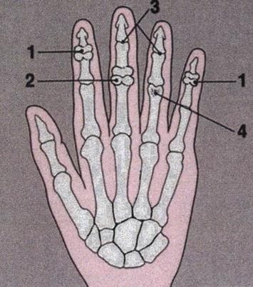 uhise poletik on anklestop valutab salvi sormele