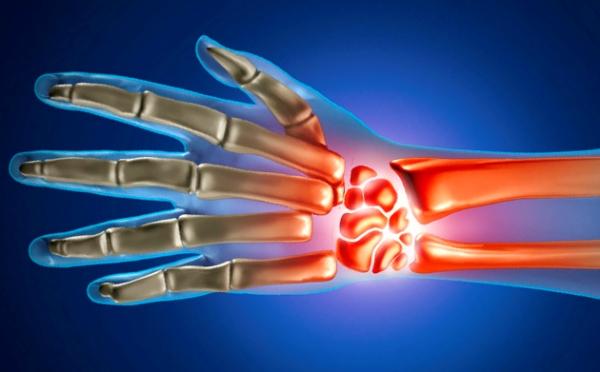 sormede liigeste artroos pohjustab kui loualuu uhendused kahjustavad