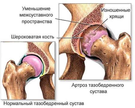 liigesed ja nende haigus artroosi top ravi