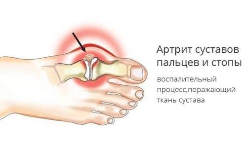 prednisoon liigeste raviks miks kasitsi valus harja