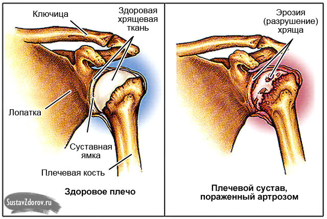 valu paremal kuunarnukis uhistes pohjustes ja kuidas ravida tableti liigeste valu tottu