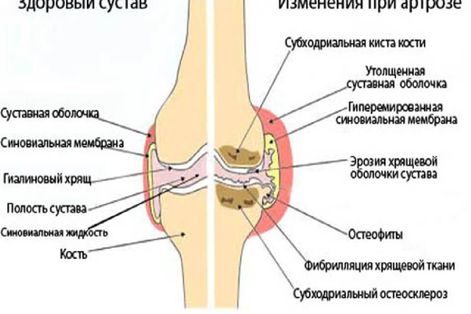 crunch liigesed haige lihased liigeste ravi tiraspolis