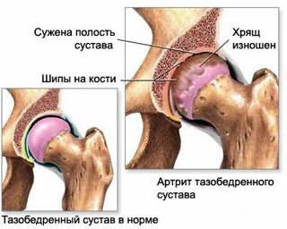 anesteetikumi valu liigeste ravi