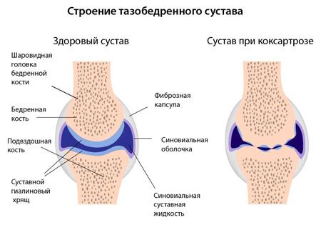 osteokondroosi ravi salvi uhenduste salv zoovip