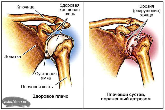 kui liigesed valus ja ola kuidas kiiresti eemaldada poidla poletik