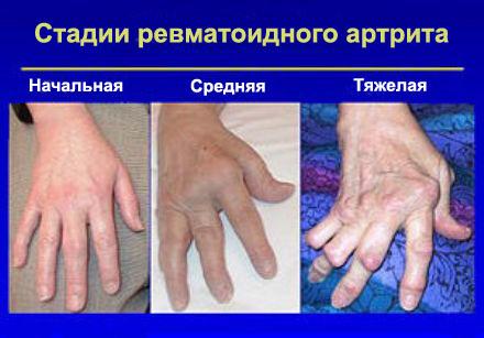 jalgade harjade liigeste artroos
