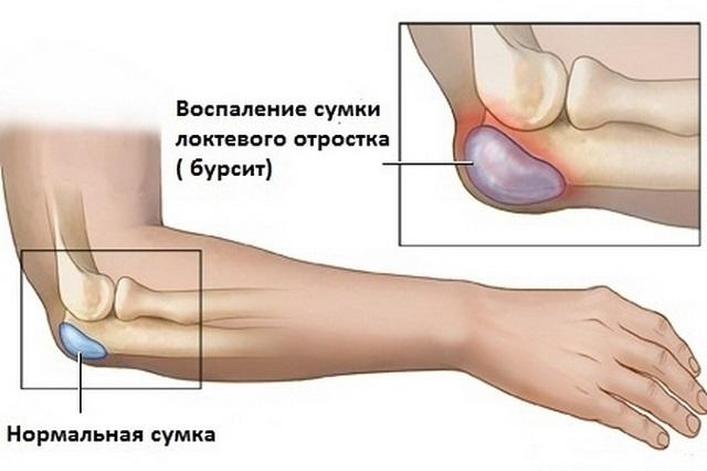 valu pohjustab kuunarnuki liigese paindumisel