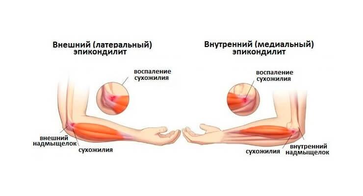 terav valu kuunarnuki liigeses kui vajutate