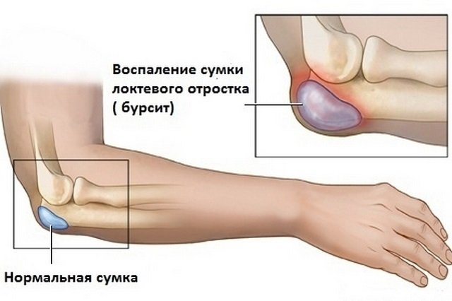 burshith kuunarnuki liigese ravi kodus soveres kahjustab ravi salvi