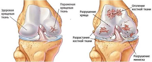 artrosi jala margid ja ravi supercooling valus liigese