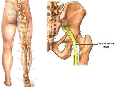 lihasvalu ja liigesed tombuvad kuldne ristloige salvi liigestele