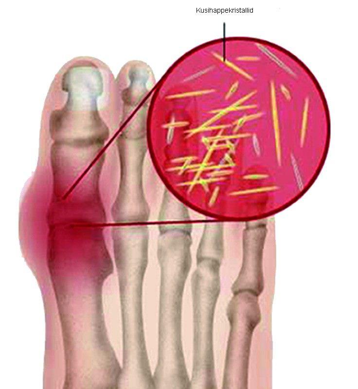 mida tekib sormede artriit