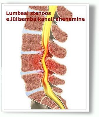 seljavalu ja liigeste valjumine artroosi inimeste retseptide ravi
