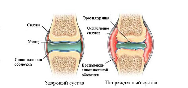 artrosi jalgade ravi