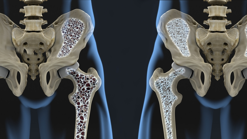 vitamiinid ola liigese artroosiga kvarts artroosi ravis