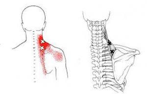 reie ja liigese kaela valus