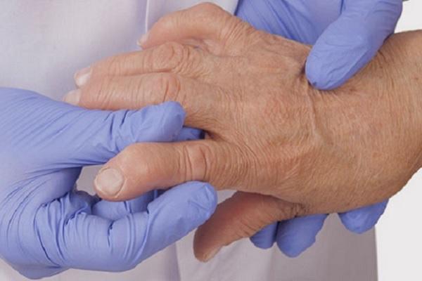 valu liigeste kompressioonid vasaku kae keskmise sorme liigese hankimine
