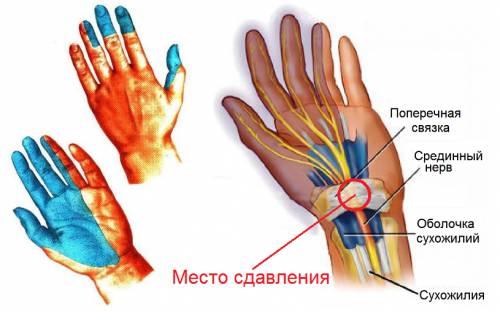 paisuvad kate sormede liigesed mida teha soovitused liigeste valude jaoks