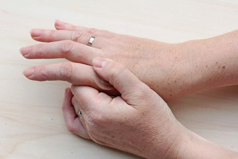 3 kraadi kuunarnuki liigeste artroos
