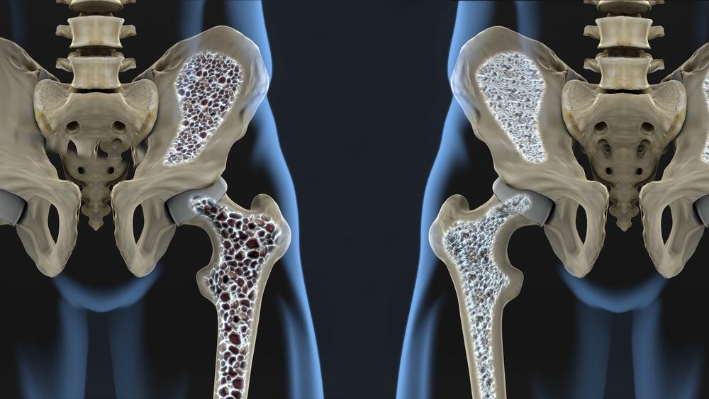 mida tahendab liigesed tugev valu jalgades