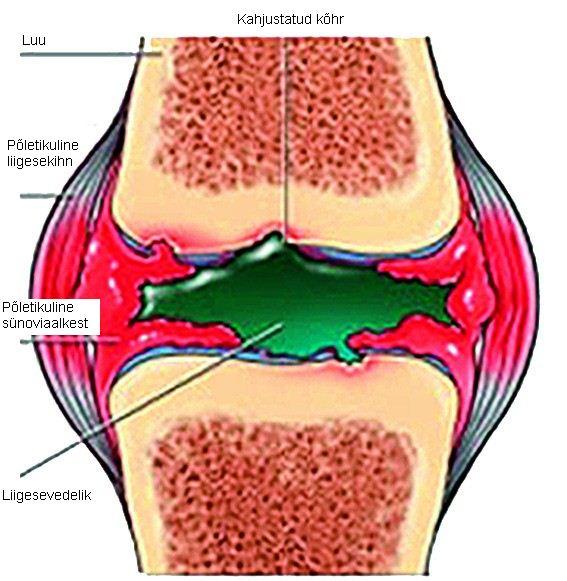 kui liigesed on hommikul haige valu ola- ja kuunarnukites ja katelihaste lihastes