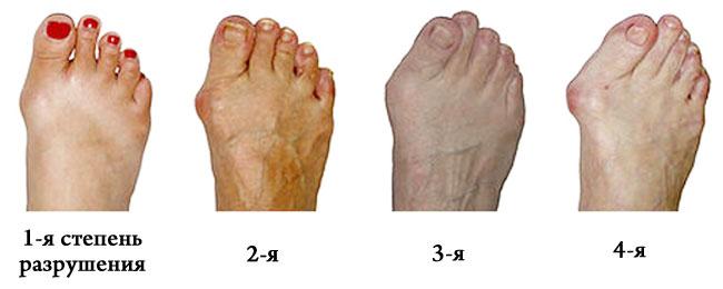 jala tihedate kingade liitude poletik parimad artroosi raviks