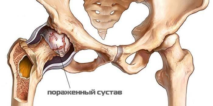 homoopaatilised ravimeetodid liigeste tootlemiseks progressiivse artroosi ravi