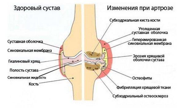 valus liigesed ja paisuvad mida teha jalgida liigese ja ola ravi