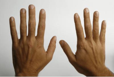 osteokondroos milline salv