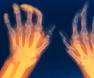 keskmise sorme liigeste valu pohjused