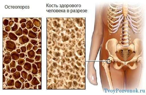 kuidas luud ja liigesed leukeemia ajal haiget