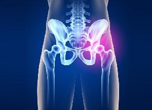 elbow liigese 3 kraadi artroos