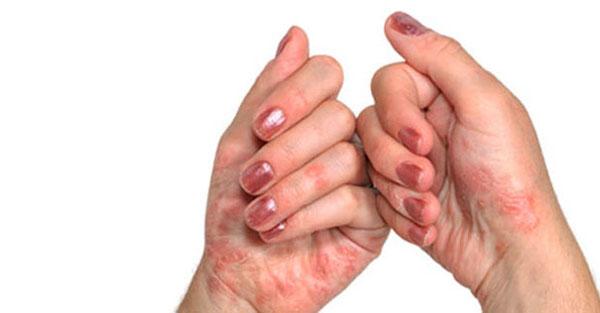 jala sormi liigeste artriit kuunarnukite valu ravi
