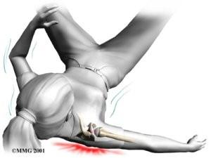 liigutamise piiramine olaliiges parast vigastust meditsiin mitmesugused sailitavad